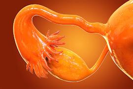 Câncer de ovário: as novidades no tratamento desse grave tumor