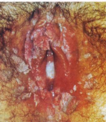 Are you Suffering From Bacterial Vaginitis?