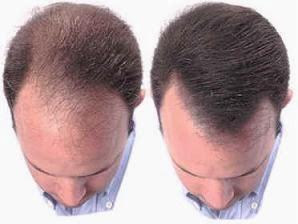 como recuperar cabello perdido