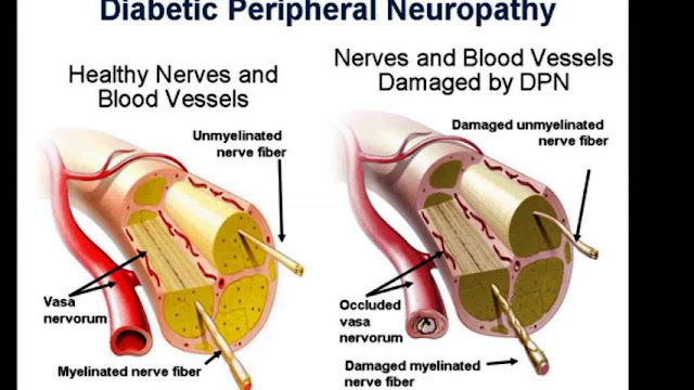 What Is Nerve Gliding and Can It Help With Diabetic Neuropathy in the Feet
