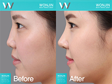 짱이뻐! - Korean Rhinoplasty - Dorsal Augmentation