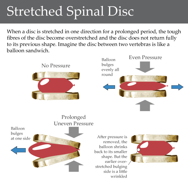 herniated disc exercises: