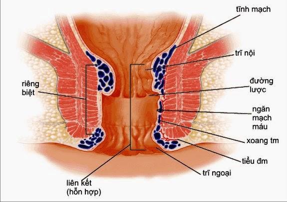 Điều trị bệnh trĩ cho phụ nữ sau sinh