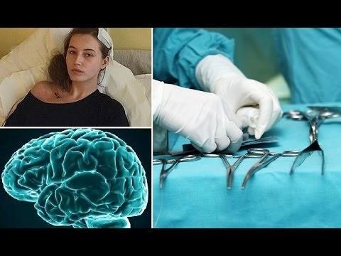 Ngeri Remaja tersedar ketika pembedahan buang ketumbuhan di otak
