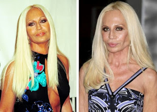 Kegagalan Operasi Plastik Donatella Versace