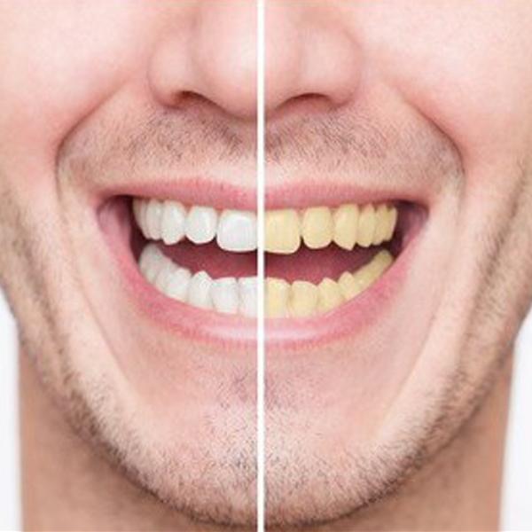 Cara Memutihkan Gigi Secara Alami Deangan Cepat Dan Aman Tips