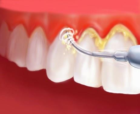6 Cara Menghilangkan Karang Gigi