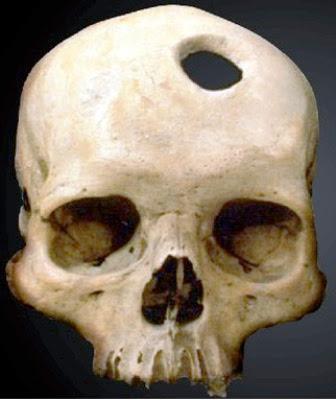 Los cirujanos Incas y las cirugías de cráneo trepanaciones