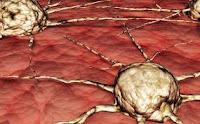 Macam-macam Penyakit Berbahaya Dan Mematikan [ lensaglobe.blogspot.com ]