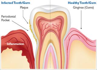 Glendale dental implant surgeon