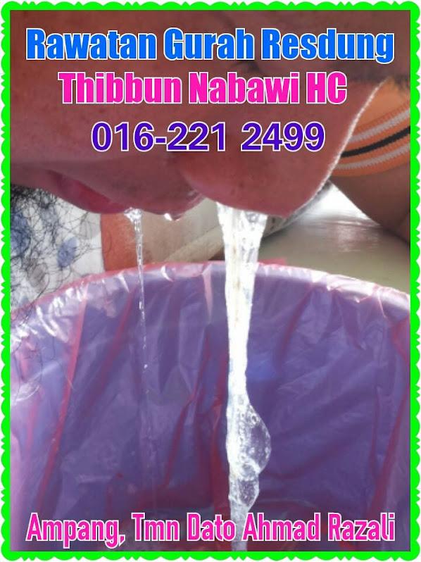 RAWATAN GHURAH RESDUNG & HOMEOPATI RM55/SEJAM