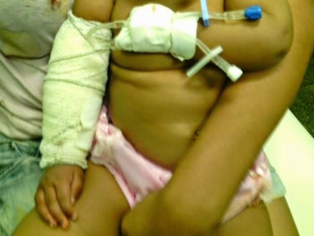 Bebê fica ferido após ser atingido de raspão por bala perdida em Luís Eduardo Magalhães  (Foto: Naldo Vilares/ Blog do Sigi Vilares)