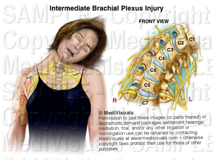 The Medical Legal Exhibit Expert Blog: Understanding the  of Traumatic cervical sprain icd 10