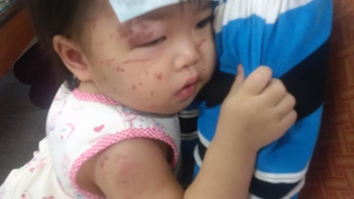 """Gia Lai: Vụ """"Cháu bé bị nhiều vết thương ở nhà trẻ"""" - Cô giáo không kiểm soát lớp học là sai!"""