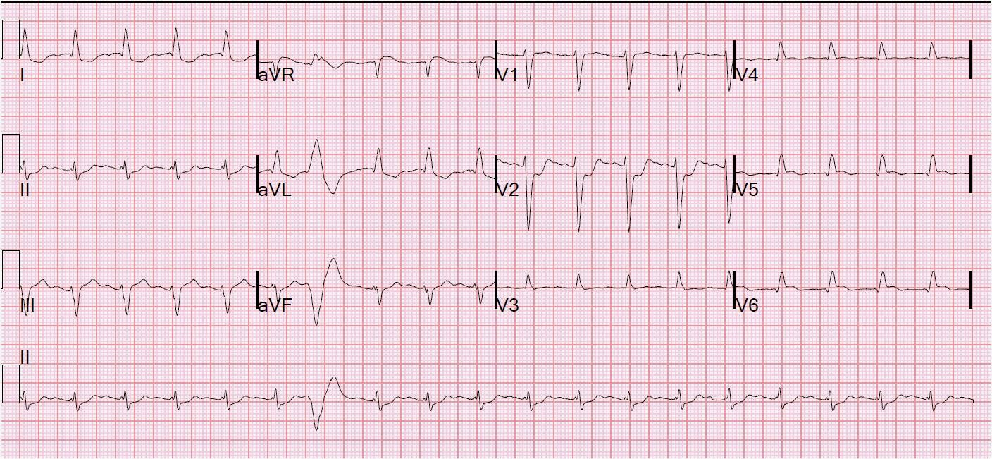 Dr Smiths ECG Blog Five Primary Patterns Of Ischemic ST - Whats my elevation