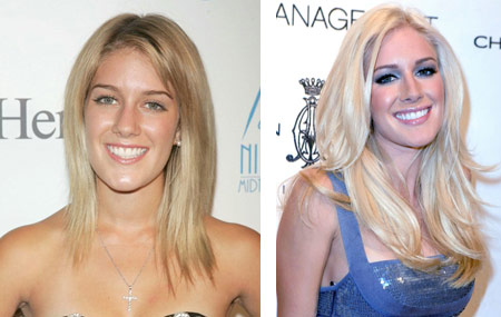 heidi montag plastic surgery scars. hairstyles 2010 heidi montag