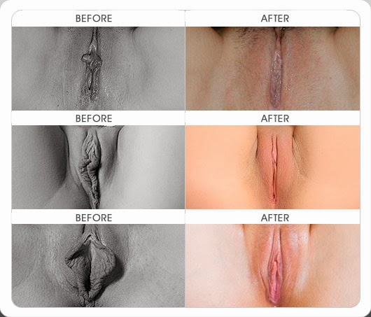 Vagina before and after sex