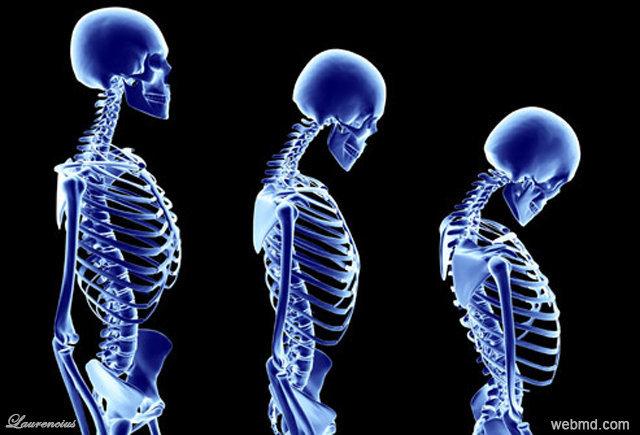 foto_penyakit_tulang-osteoporosis-Laurencius