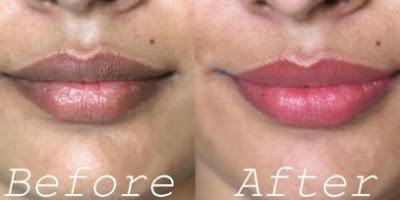 Cara Mudah Hilangkan Bibir Hitam Hanya dengan 5 Bahan Alami