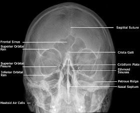 Adult+Facial+Bones+-+PA+30%25C2%25B0+%2528Modified+Parietocanthial%2529.jpg