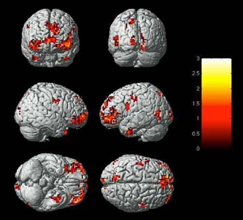 Forschern ist es erstmals gelungen emotionen bestimmten