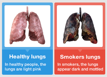 Must-watch Video: What REALLY Happens to Your Lungs After ...