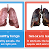 Must-watch Video: What REALLY Happens to Your Lungs After Only 60 Cigarettes?