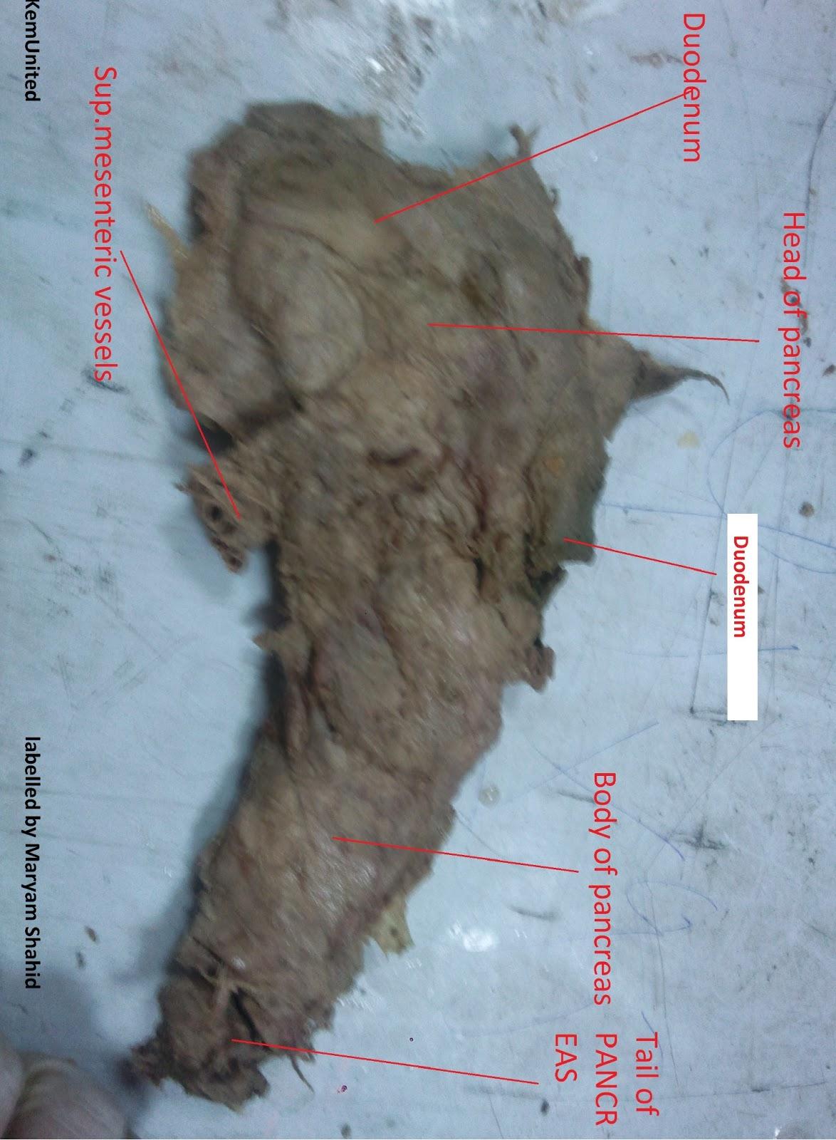 Abdomen Pelvis Anatomy Spots Labelled