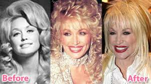 parton breast implants Dolly