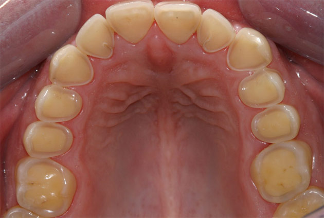 absolute dental centre dental erosion why 4 a day is
