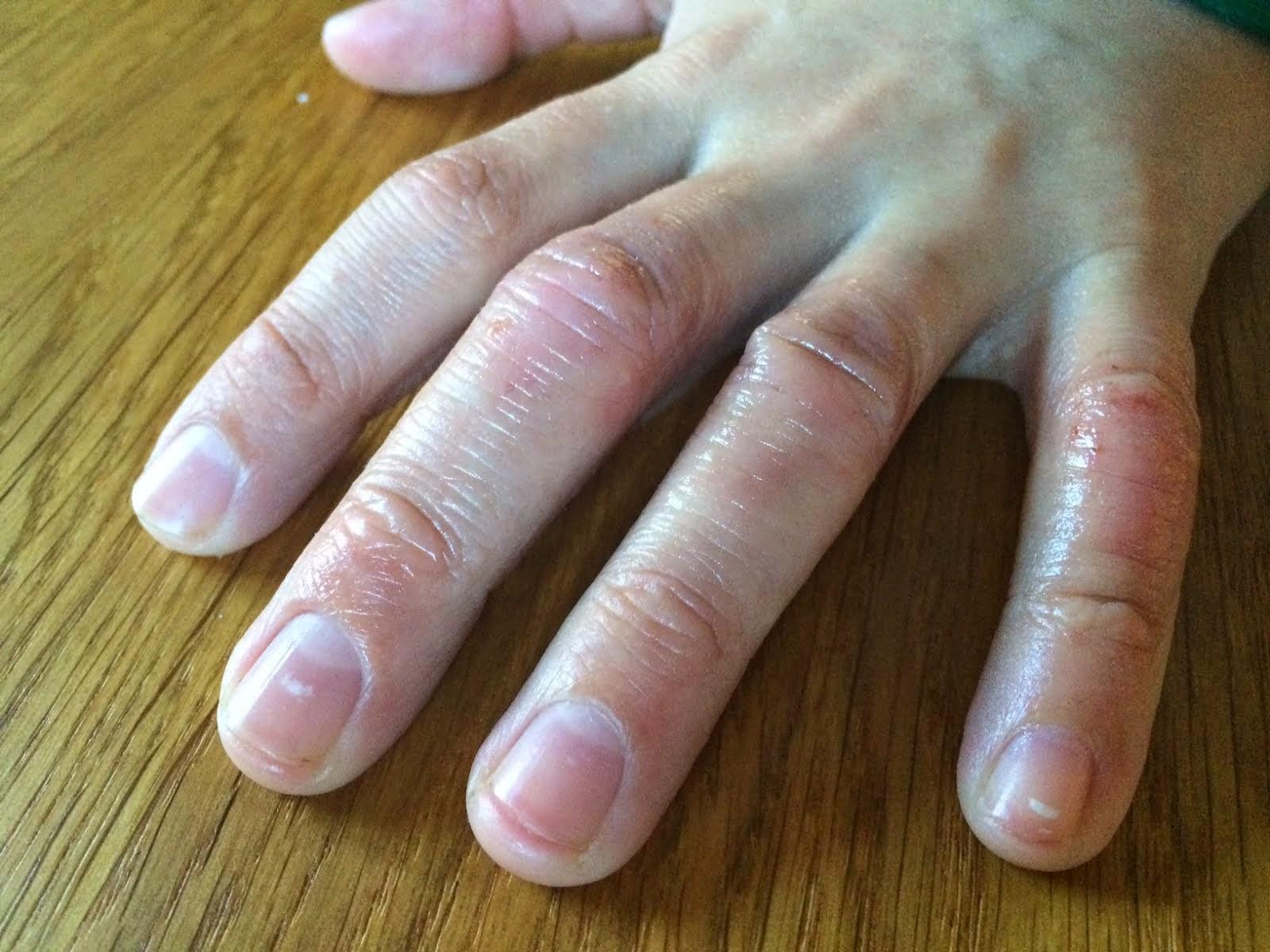 blemmer på hender bilde