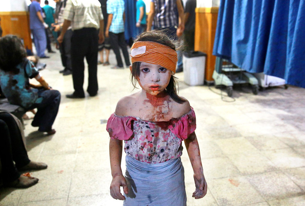 70 Of The Most Touching Photos Taken In 2015 - A wounded Syrian girl wanders about a makeshift hospital in the rebel-held area of Douma