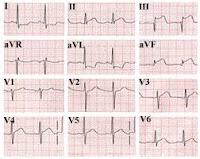 pemeriksaan jantung, EKG, Blog Keperawatan