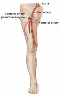 steroid pulled muscle