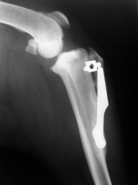 TTA de rodilla, vista mediolateral