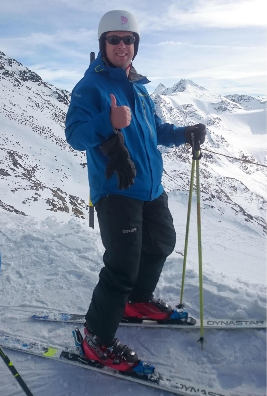 Keratoconus will not stop me from skiing