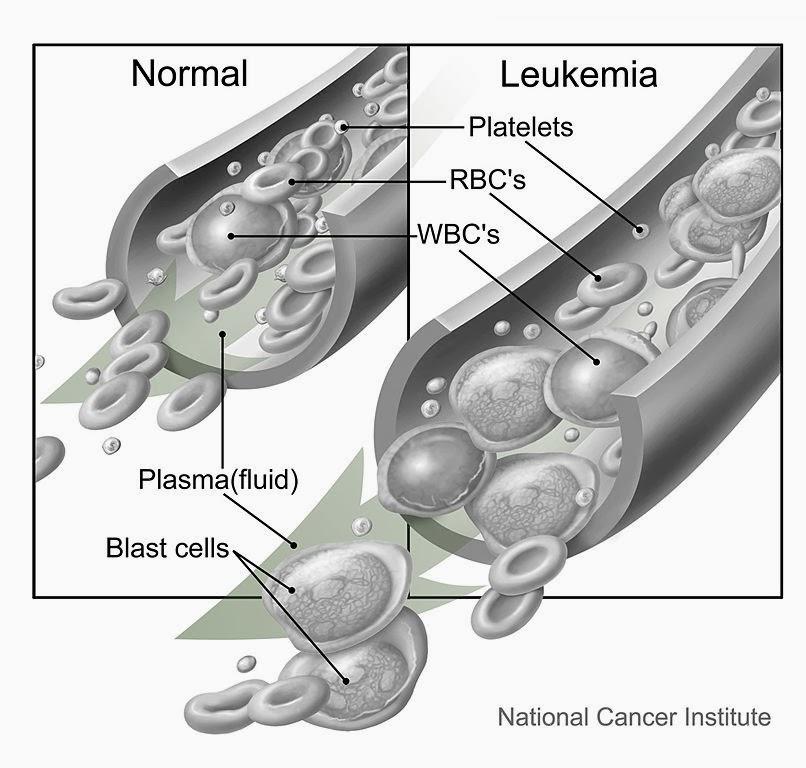 How Do You Get Leukemia
