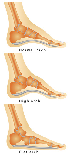 flat feet and lower back pain texas orthopedics
