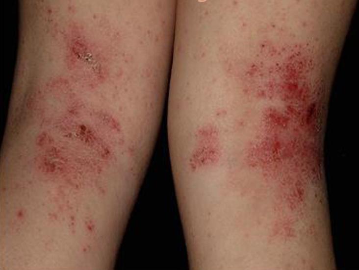 Resultado de imagen de dermatitis atópica