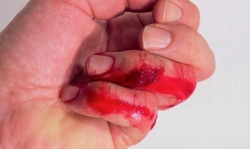 Αυτός είναι ο καλύτερος τρόπος να σταματήσετε την αιμορραγία!