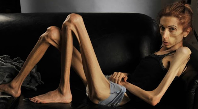 This Anorexic Actress Makes Unique Transformation After Nearly Dying