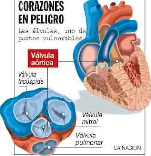 Enfermedad válvulas del corazón