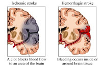 Types of Stroke Medical Treatment Therapy