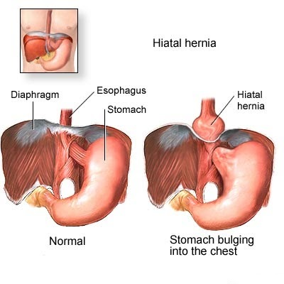 HERNIA SYMPTOMS: Symptoms which may suggest the