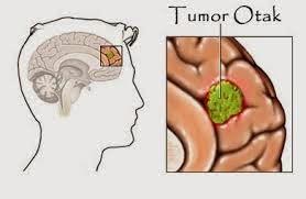 Obat Herbal Tumor Otak