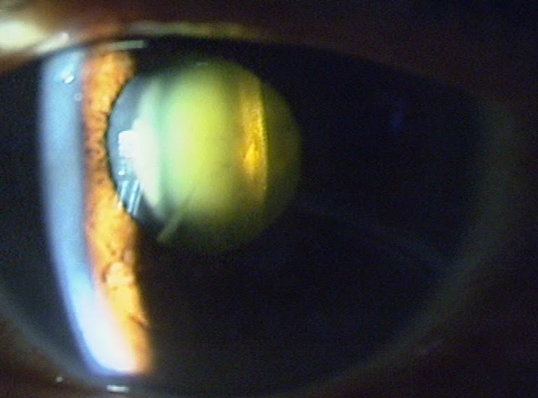 All things eye | Por Yong Ming: Cataract and Cataract Surgery FAQs