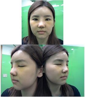 foto sebelum dan sesudah operasi plastik hidung di Wonjin-2