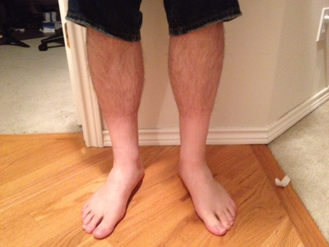 Hair Loss on the Legs – Causes of Falling Leg Hair – Phaa.com