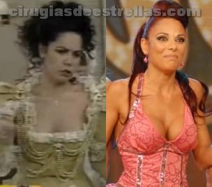 Iliana Calabró antes y después