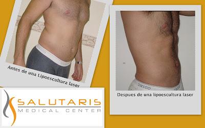 Antes y Despues de una lipo escultura laser de abdomen y flancos en hombre. Salutaris Guadalajara Mexico